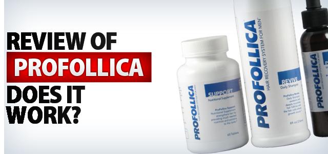 Does Profollica hair loss treatment work