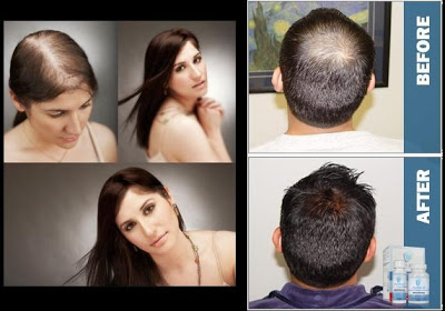 top hair loss treatments