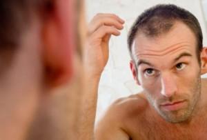 thining hair remedies