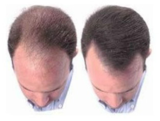 Best Hair Loss Remedies