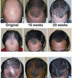 naturalhairloss remedies
