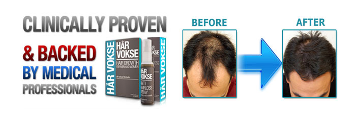 harvokse hair loss treatment