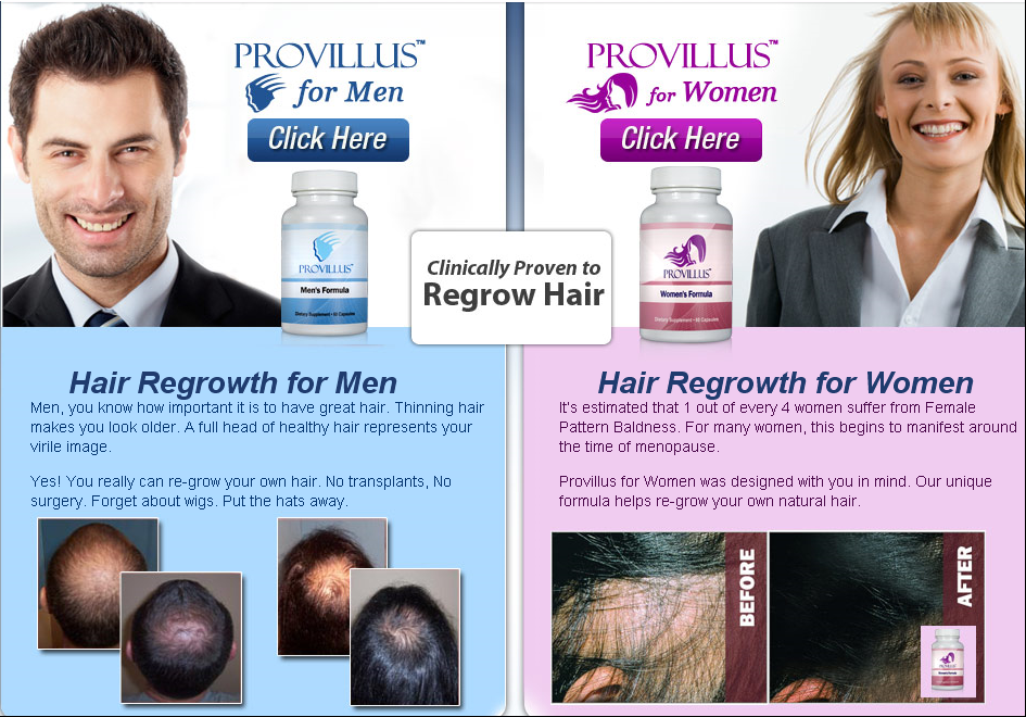 provillus hairloss remedy review